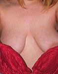 bunny tits